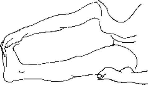 При растяжке болит задняя часть колена