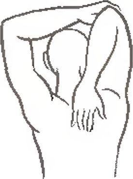 Растяжение подлопаточной мышцы лечение thumbnail