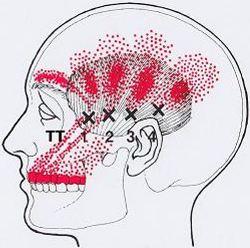 Демодекоз у человека на спине лечение