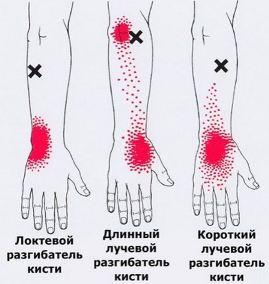 на левой руке кисти болит вена