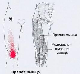 Боль в левом боку внизу поясницы у женщины