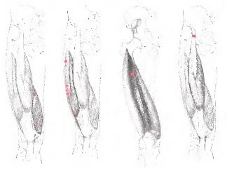 Что делать если нога опухла и болит в области ступни