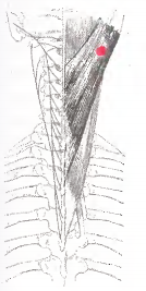 Симптомы болезни грудного отдела позвоночника симптомы