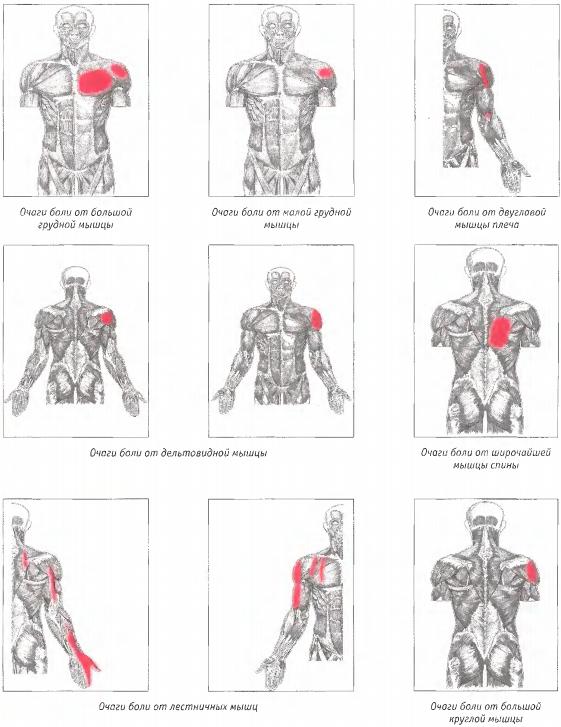 Почему болят мышцы рук от плеча